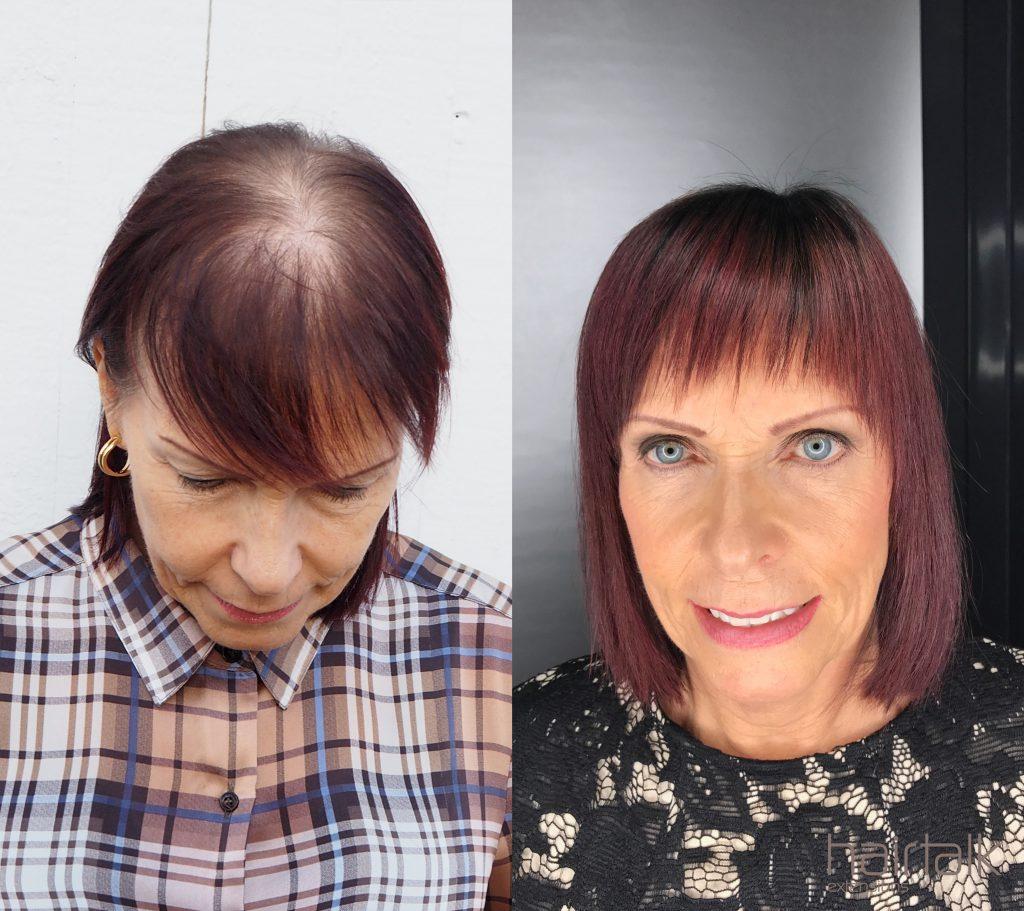 frisör alopecia malmö dropin instagram balayage hårförlängning olaplex slingor onlinebokning hairtalk extensions klippning hairwear hairbyemc dermasalong