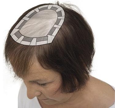 frisör alopecia malmö dropin instagram balayage hårförlängning olaplex hårersättning slingor onlinebokning hairtalk extensions klippning hairwear hairbyemc dermasalong