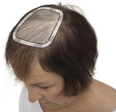 frisör alopecia malmö dropin instagram balayage hårförlängning olaplex slingor onlinebokning hårersättning hairtalk extensions klippning hairwear hairbyemc dermasalong