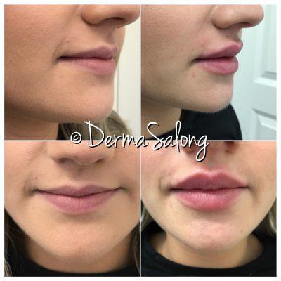 ansiktsbehandlingar malmö dermabrasion ipl mesoterapi hårborttagning diatermi dermapen filler fillermalmö läppförstoring iplmalmö