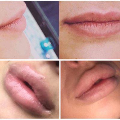 juvederm juvedermmalmö princess ansiktsbehandlingar malmö dermabrasion ipl mesoterapi hårborttagning diatermi filler fillermalmö läppförstoring iplmalmö